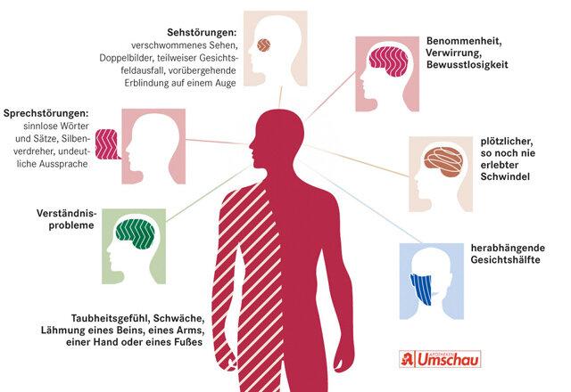 Durchblutungsstörung im Gehirn