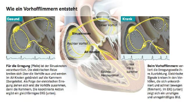 Vorhofflimmern (Schematische Darstellung)