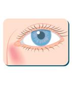 Illustration Augenleiden Tränensack geschwollen