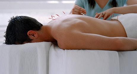 Patient bei der Akupunktur