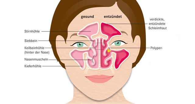 Nasenpolypen bilden sich oft auf dem Boden einer Nasennebenhöhlenentzündung