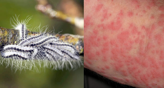 Kontaktallergie durch Raupe des Eichenprozessionsspinners