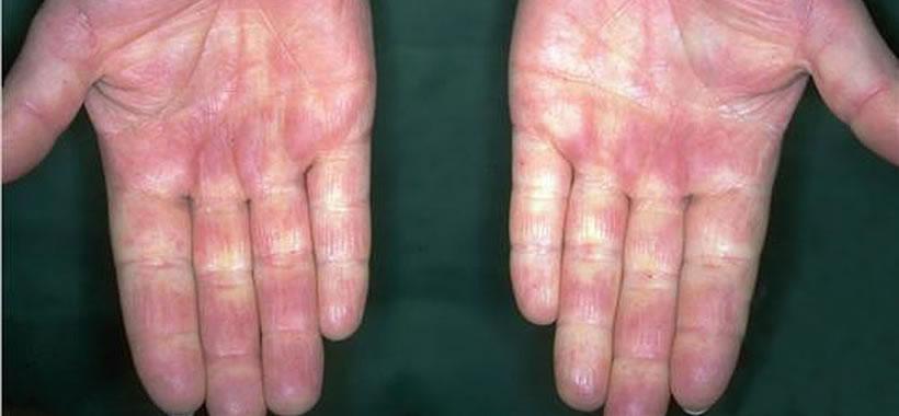 Kalkablagerung Haut