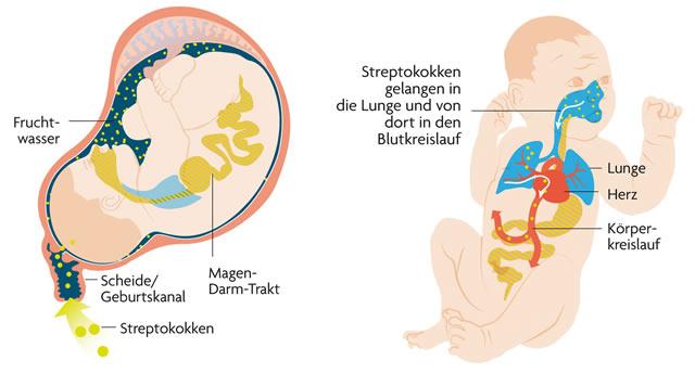 Streptokokken-Infizierung